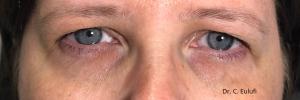 Blépharoplastie pré-opératoire