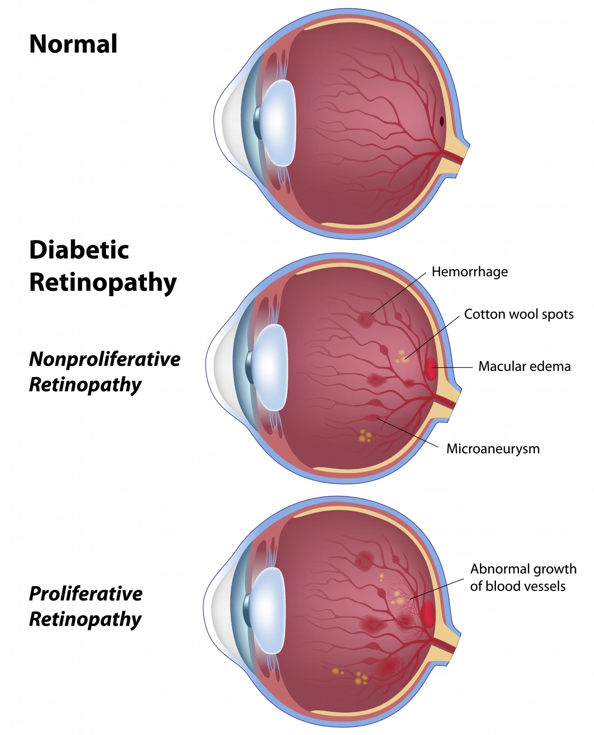 Stades du diabète de l'oeil